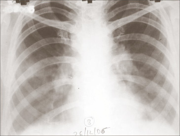 Figure 1 :Chest X-ray revealed bilateral hilar prominence with left-sided pleural effusion