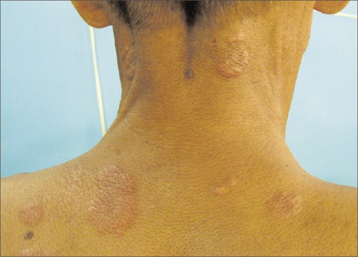 gallery for gt tuberculosis skin lesions