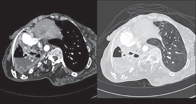 Figure 1: Computed tomography of the chest revealed marked collapse of the right lung, ipsilateral shift of mediastinum with bronchiectatic changes within the collapsed lung. It also showed thick and calcifi ed rind, loculated pleural effusion with air-fl uid level and right sided rib thickening. The left lung parenchyma was normal