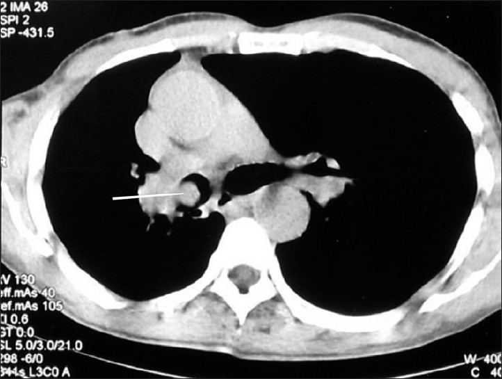 Figure 2: CECT chest axial section in mediastinal window, showing nodular lesion inside the right main bronchus (arrow)