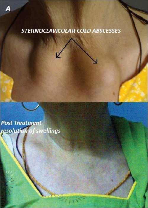 Figure 1 :Swellings over sternoclavicular joints (upper) and resolution of swellings after antitubercular therapy (lower)