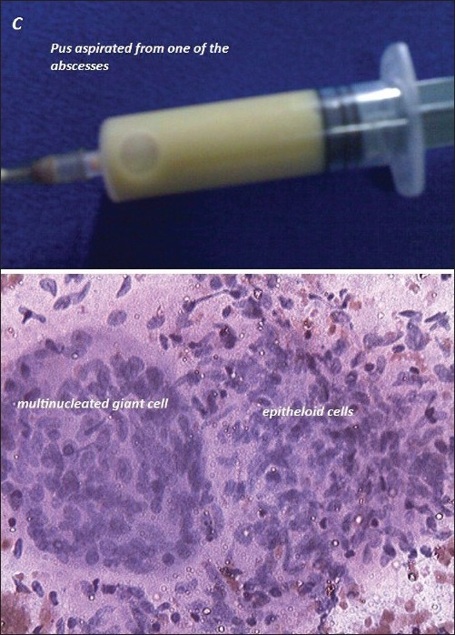Figure 3 :Pus from one of the swellings (upper) and fine needle aspiration of anterior mediastinal component showing epitheloid cell granulomas with multinucleated giant cells and necrosis (lower)