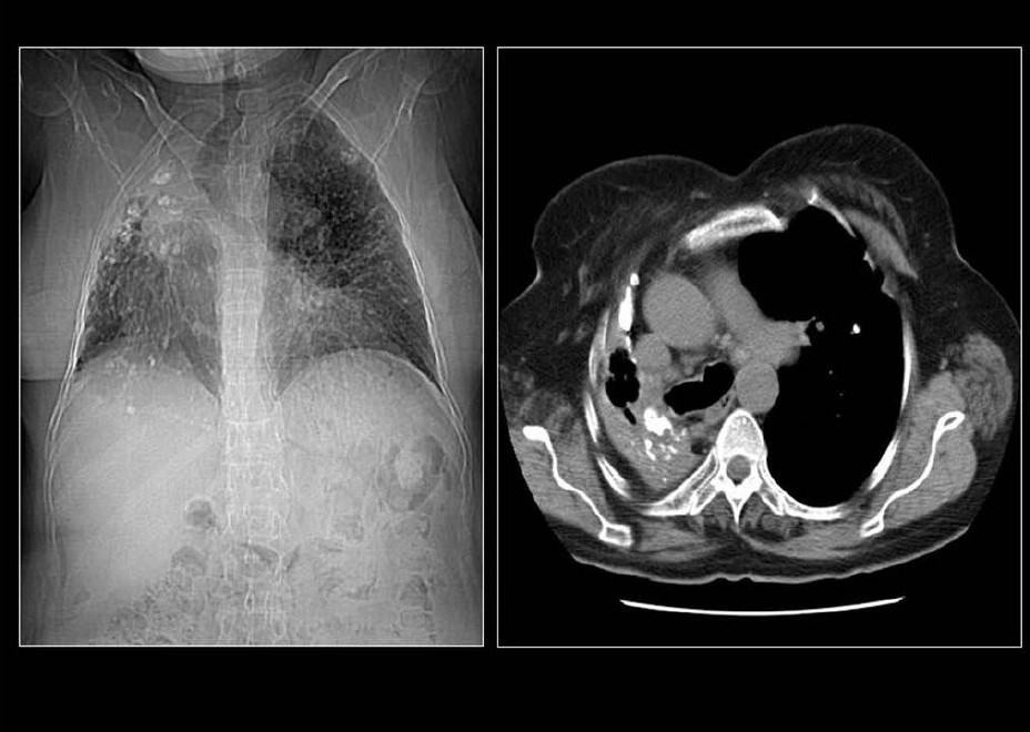 Figure 10 :A chest radiograph and CT showing features of old healed TB. Note the loss of lung volume/fibrosis in the right upper zone and the associated pleural calcification due to a previous tuberculous empyema. Calcific granulomas are also noted in the left apical region