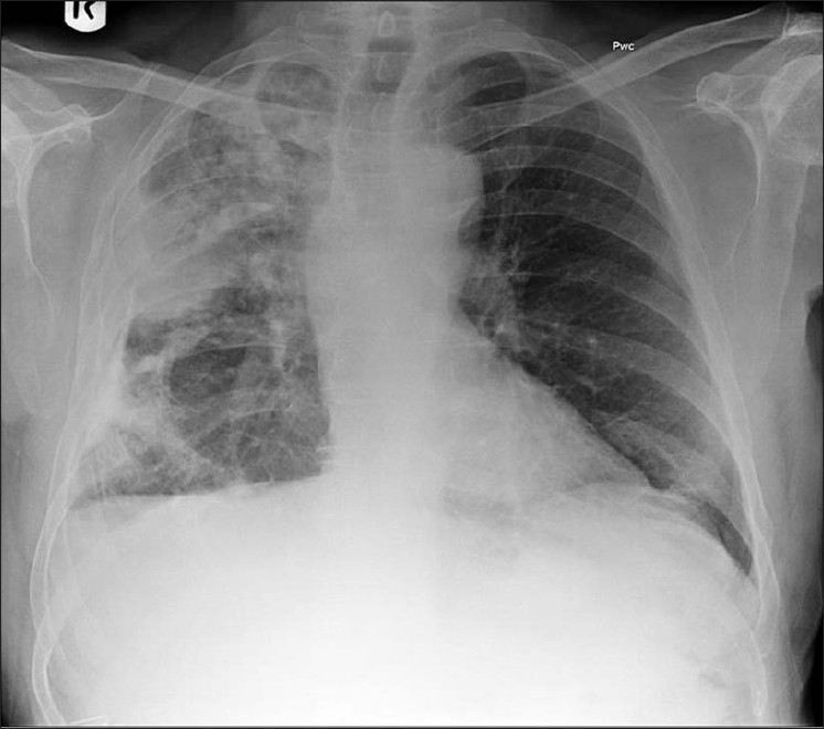 Figure 13 :A chest radiograph of a patient with history of asbestos exposure shows multiple right-sided pleural plaques some calcified and a large pleural based PN raising the suspicion of a mesothelioma (See Figure 14)
