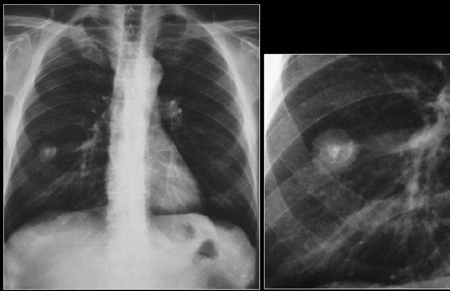 Figure 3 :A chest radiograph shows a fairly well-defined PN in the right mid zone associated with a central nidus and a laminated calcification in a pulmonary hamartoma