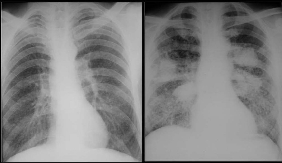 Figure 31 :Two chest radiographs from the same Iron ore worker 10 years apart shows fine high-density nodules (left) progressing to PMF 10 years later