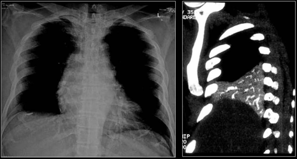 Figure 35 :A chest radiograph and coronal reconstruction of CT shows tubular opacities of metallic density due to acrylic cement pulmonary emboli as a complication of vertebroplasty