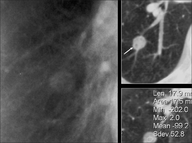 Figure 5 :A blown-up image from a chest radiograph and axial CT scans showing low attenuation areas (arrow) within the PN due to fat virtually diagnostic of a hamartoma
