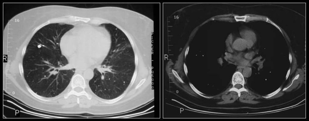 Figure 6 :Axial CT scans shows multiple small calcific PNs due to old healed histoplasmosis