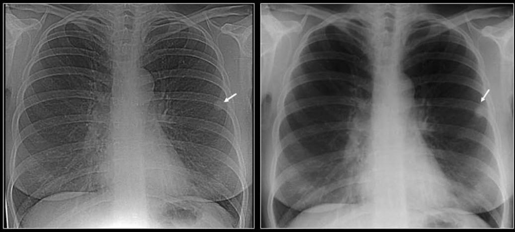 Figure 7 :Two chest radiographs 5-years apart showing a high-density solitary pulmonary nodule remaining unchanged over a 5-year period. One of the most reliable imaging features of a benign lesion is as a benign pattern of calcification and periodic follow-up with CT showing no growth for 2 years. The high density of the well-defined nodule suggest that this is calcified granuloma and no further follow-up is indicated except in patients with calcium producing tumors such as a primary osteosarcoma