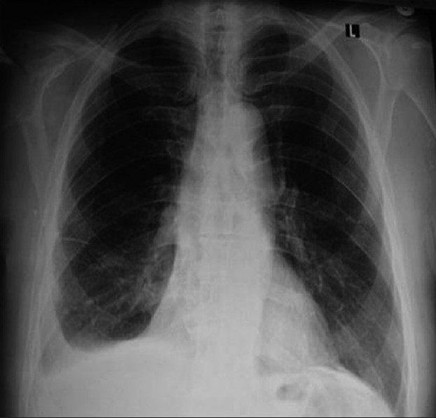 Figure 1 : Posteroanterior chest X-ray shows minimal right-sided pleural effusion; there is left-sided pleural calcification
