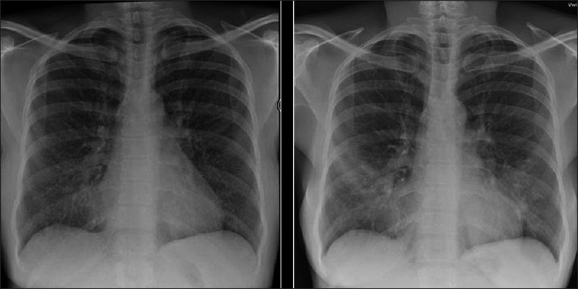 ... chest x ray showing bilateral reticulonodular interstitial infiltrates