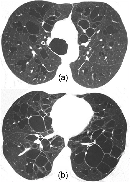 Figure 1: Computed tomography scans at the level of upper (a) and lower lobes (b) showing widening of the trachea and extensive diffuse bronchiectasis