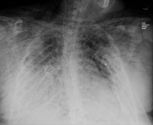 Figure 2: Chest X-ray demonstrating subcutaneous emphysema
