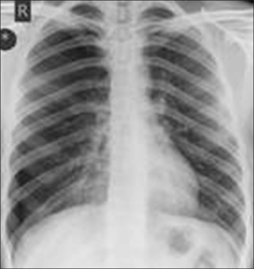 Figure 2: Large RT sided pneumothorax