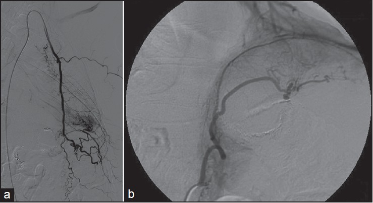 Figure 1: Arteriograms showing systemic inferior left lobe support and pseudosequestration. (a) Left phrenic artery. (b) Intercostal branches after coils for the embolization of internal mammary artery and left phrenic artery