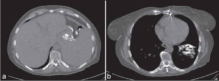 Figure 2: CT scan images. (a) Gastric mucocele filled in with oral contrast. (b) Left lower bronchii filled in with oral contrast secondary to gastro-bronchial fistula