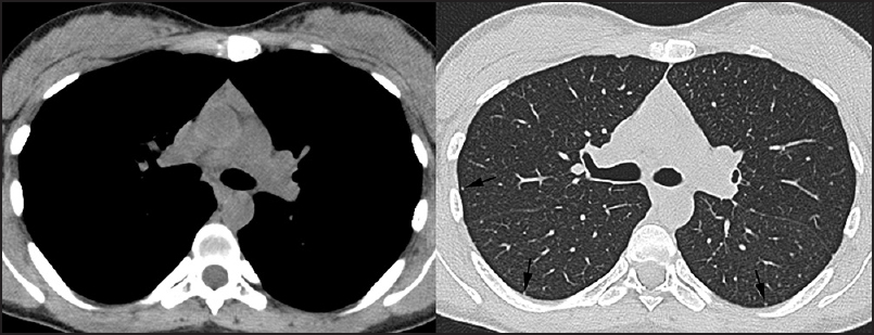Figure 4: Computed tomography images show complete resolution of lymphadenopathies and ground-glass opacities; only a few small nodules are detected (arrows)