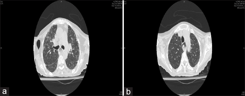 Figure 1: (a) High-resolution computed tomography for a patient before rituximab. (b) High-resolution computed tomography for the same patient after rituximab