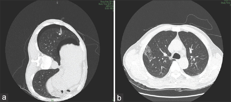 Figure 2: (a) Computed tomography scan shows new appearance of minimal pneumothorax after hook wire localization. (b) Computed tomography image of asymptomatic hemorrhage around the nodular lesion